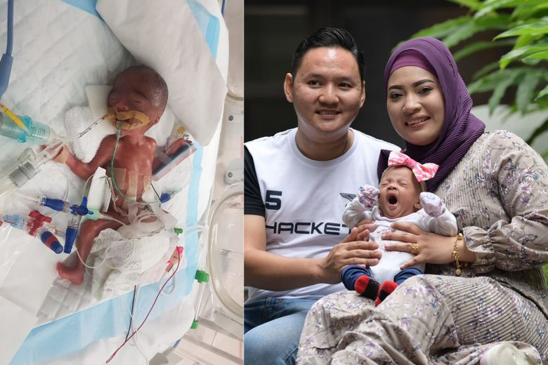 Zaiya: Singapore's Smallest Premature Baby Weight 345g